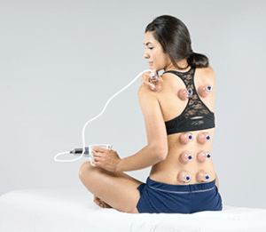 Meridius-Medical-Cupping-Therapy-Supplies